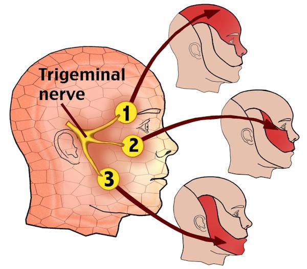 dibujo neuralgia del trigemino